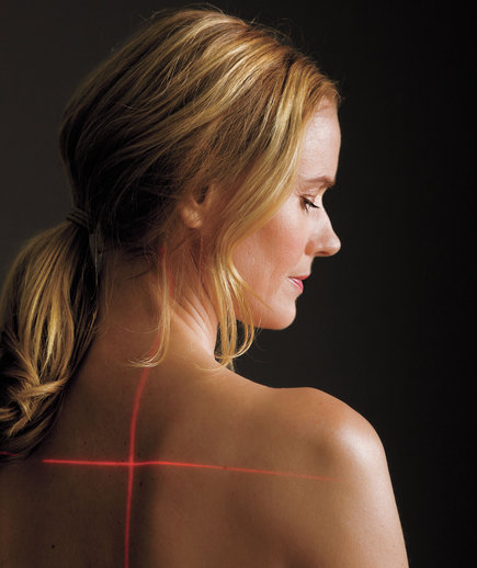 laser-treatments-woman